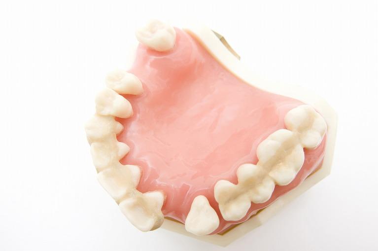 歯を失う原因の第一位は歯周病