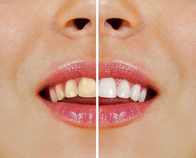 ホワイトニングで歯が白くなる理由